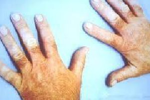 White finger syndrome