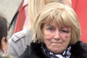 A woman was injured as Police moved to stop an illegal parade in Lurgan.