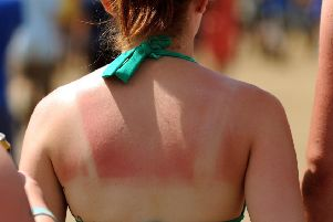 Did you get sunburnt over the weekend? Picture: Anthony Devlin/PA Wire