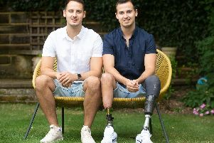 James was born prematurely at 28 weeks with his twin brother Tom, due to a condition called twin-to-twin transfusion - where one gets more blood than the other