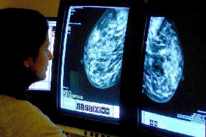 Thousands of Nene women missing breast screening tests, NHS figures reveal