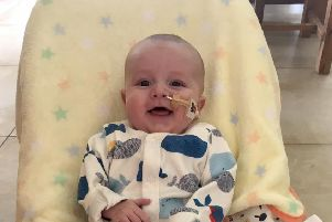 13 month old Alexander Kearney who has the congenital heart defect hypoplastic left heart syndrome