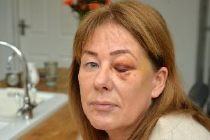 Business owner Helen Walker shows off her injuries after being attacked by a violent robber after she decided to stand up to him in her salon.'PICTURE: ANDREW CARPENTER NNL-181128-092905005