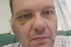 Nigel recovering in hospital in 2015.