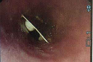 Photo of an examination taken of a packet of painkillers lodged in a woman's throat, which remained undetected by doctors for almost three weeks. Pic: BMJ Journals/PA Wire