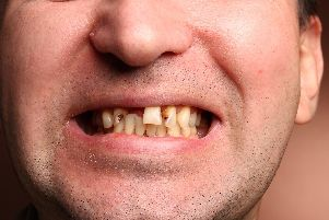 A file photo of a man with rotten teeth