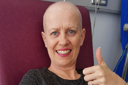 Wendy began losing her hair during her treatment and asked her husband to shave her head