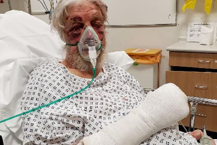 The victim was pushed in the back and fell into a wall and suffered 'horrific' injuries. Picture: Metropolitan Police/PA Wire