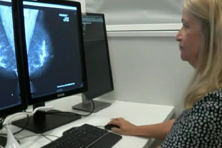 Artificial Intelligence being trialled to help analyse breast scans. EMN-190816-173222001