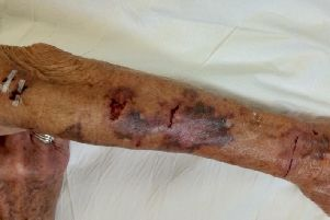 Jo Phillips has shown the injuries she was left with