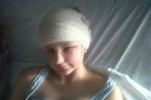 Izzy Colville in hospital after surgery. The Brain Tumour Charity.