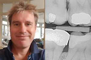 Andrew Fruish was beset with toothache for nearly a year after his tooth decay went undiagnosed.