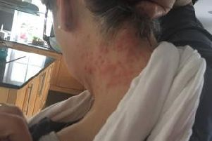 Rash caused by the caterpillars