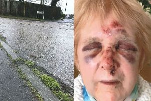 Loraine Stephens was walking home when she fell over while crossing the road in Vermont Drive, at the junction with Vermont Way, East Preston