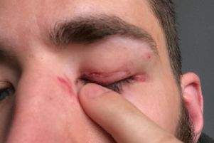Mr Winkler sustained a hole to the eyelid after he was punched outside the Coop.