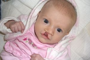 Baby Imogen pictured in 2006, was born with a cleft lip and palate which is agap or split in the upper lip or the roof of the mouth (palate) present from birth.