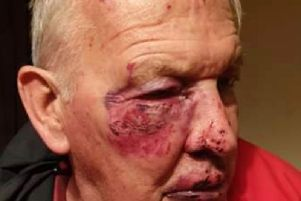 Jim sustained cuts and bruising to his face and had to have his eye socket glued.