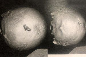 Photo shows a medical scan of Darren Selway's skull after he was attacked with a crowbar. Picture: Ashley Selway