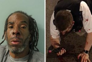 Rodwan (left) and PC Outten after the attack (right)