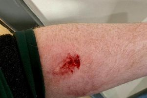 PSNI picture of injury allegedly sustained in attack.