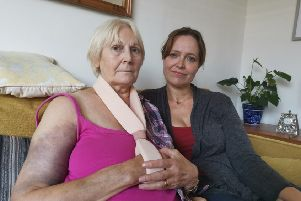 Maureen Liston, from King Edward Avenue, Worthing, has been left with a fractured humerus and shoulder due to a mobility scooter collision. Pictured with her daughter Michelle Ryan, 49